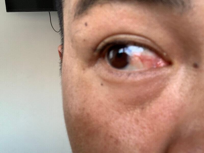 翼状片の眼球